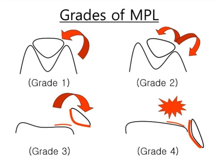 Grades of medial patella luxation